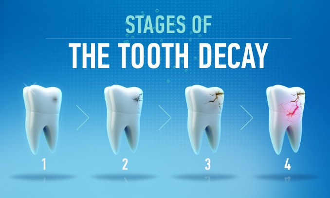 Nurses Notes - Stages of tooth decay